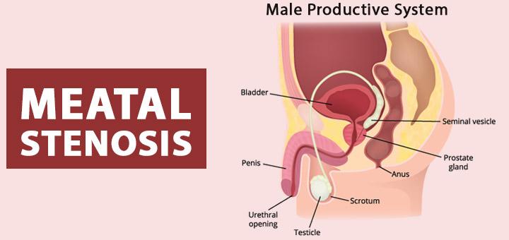 Meatal-Stenosis
