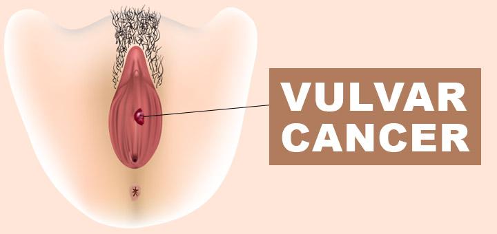 Vulvar-Cancer