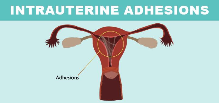 Intrauterine-Adhesions